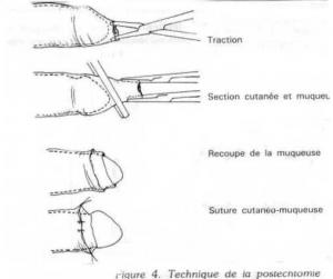 Circoncision photo avant apres